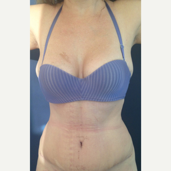 42 year old woman treated with Tummy Tuck after 2215839