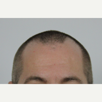 35-44 year old man treated with FUE Hair Transplant before 3616873
