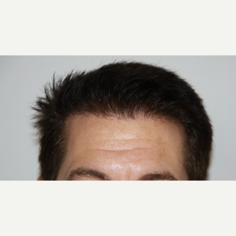 35-44 year old man treated with FUE Hair Transplant after 3616873