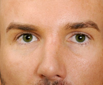 22 year old man who had rather unattractive eyes, showing 8 years following facial surgery. after 1373458