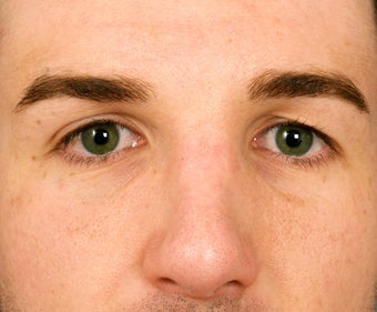 22 year old man who had rather unattractive eyes, showing 8 years following facial surgery. before 1373458