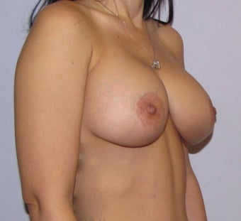 34 year old woman underwent Breast Augmentation with 360 cc high profile saline implants after 3452547