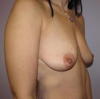 34 year old woman underwent Breast Augmentation with 360 cc high profile saline implants before 3452547