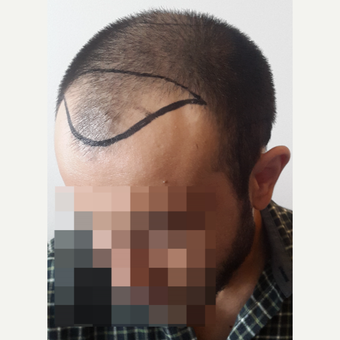 18-24 year old man treated with FUE Hair Transplant before 3729958