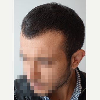 18-24 year old man treated with FUE Hair Transplant after 3729958