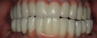 35-44 year old man treated with Dental Implants after 1992273