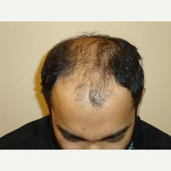 31year old man after 2 hair transplants, 4123 grafts total  before 1932375
