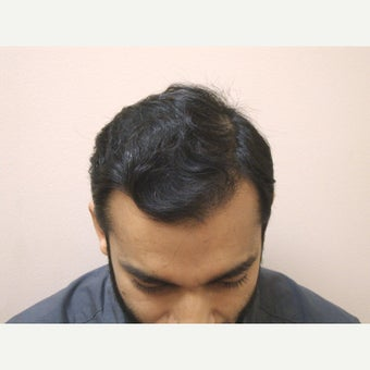 31year old man after 2 hair transplants, 4123 grafts total  after 1932375