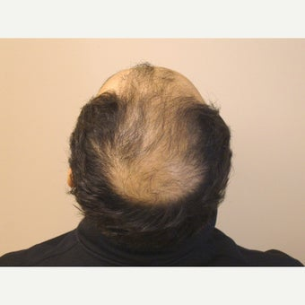 31year old man after 2 hair transplants, 4123 grafts total  1932375