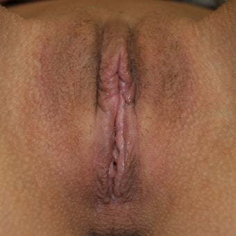 Labiaplasty / Clitoral Hood Reduction after 1956182