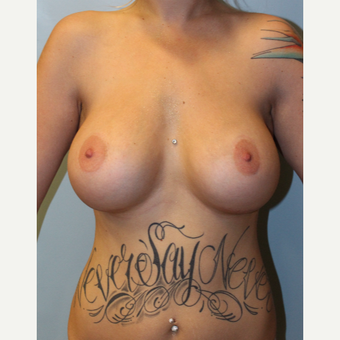 25-34 year old woman treated with Breast Augmentation after 3692139