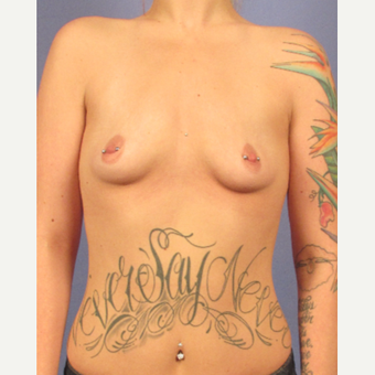 25-34 year old woman treated with Breast Augmentation before 3692139