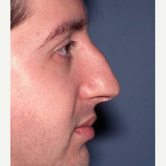 25-34 year old man treated with Rhinoplasty before 3705174