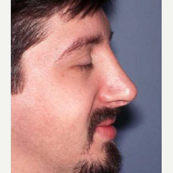 25-34 year old man treated with Rhinoplasty after 3705174