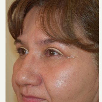 47 year-old female 6 weeks post upper eyelid blepharoplasty after 2852076