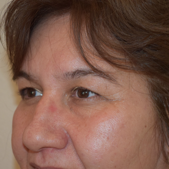 47 year-old female 6 weeks post upper eyelid blepharoplasty before 2852076