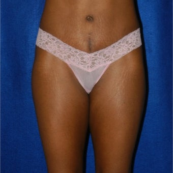 35-44 year old woman treated with Tummy Tuck after 1874868