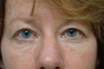 56 year old women with excess upper and lower eyelid skin
