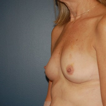 55-64 year old woman treated with Breast Augmentation before 1606886
