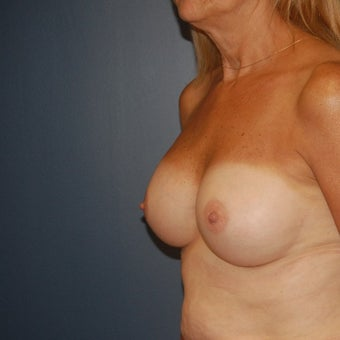 55-64 year old woman treated with Breast Augmentation after 1606886