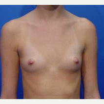18-24 year old woman treated with Breast Implants before 3669388
