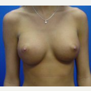 18-24 year old woman treated with Breast Implants after 3669388