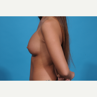 18-24 year old woman treated with Breast Augmentation after 3038346