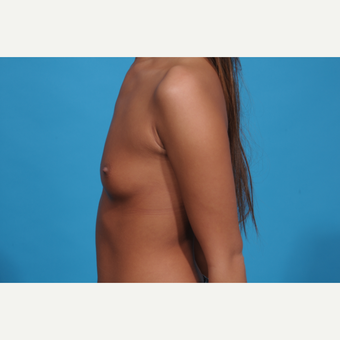 18-24 year old woman treated with Breast Augmentation before 3038346