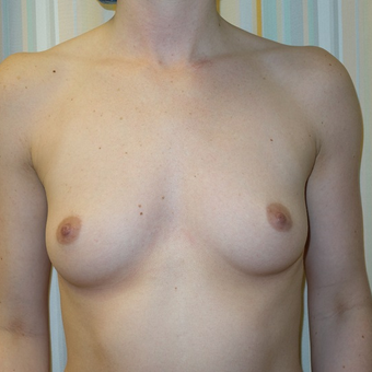 18-24 year old woman treated with Breast Augmentation before 3108777
