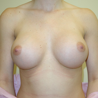 18-24 year old woman treated with Breast Augmentation after 3108777