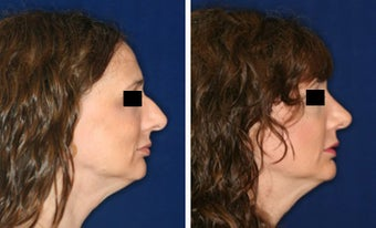 Nose Surgery before 1430824