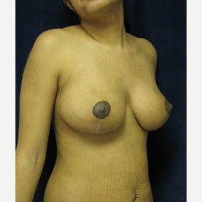 Vertical type breast lift without implants 1591493