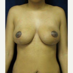 Vertical type breast lift without implants after 1591493