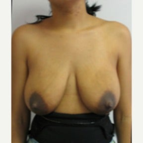 Vertical type breast lift without implants before 1591493
