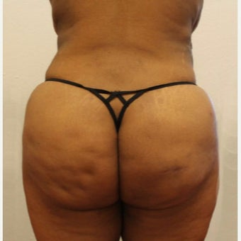 Liposuction after 1768006