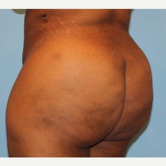 Liposuction 1768006