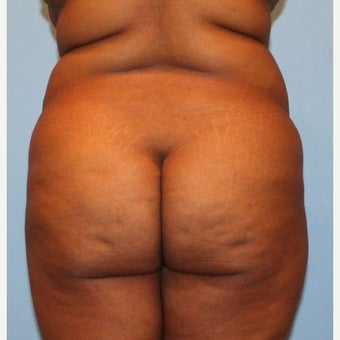 Liposuction before 1768006