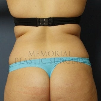 35-44 year old woman treated with Liposuction before 2126647
