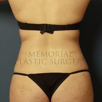35-44 year old woman treated with Liposuction after 2126647