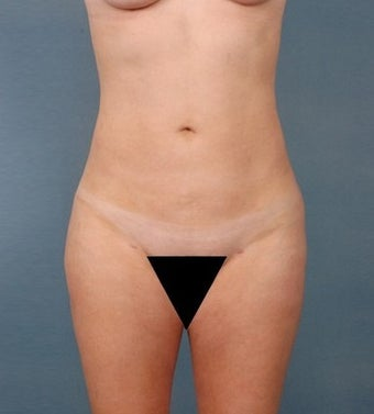 39 year old woman treated with Vaser Liposuction after 1699823