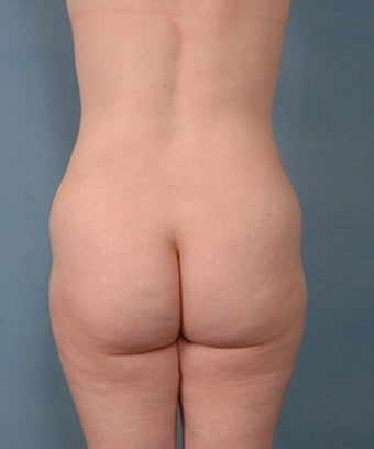 39 year old woman treated with Vaser Liposuction 1699823