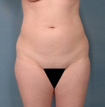 39 year old woman treated with Vaser Liposuction before 1699823