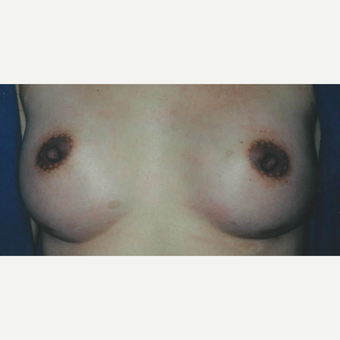 25-34 year old woman treated with Breast Augmentation after 3629269