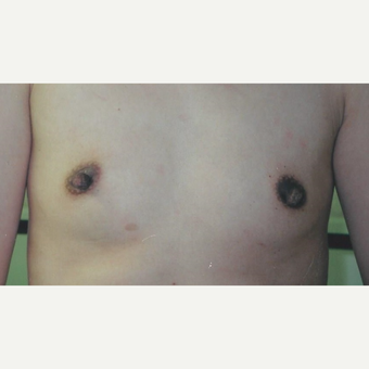 25-34 year old woman treated with Breast Augmentation before 3629269