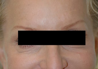 Botox for Crow's Feet after 91056