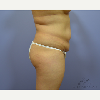 35-44 year old woman treated with Liposuction before 3391658