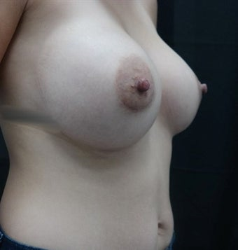 25-34 year old woman treated with Nipple Surgery before 3843891