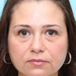 Blepharoplasty before 1156188