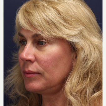 45-54 year old woman treated with Ultherapy before 3141819