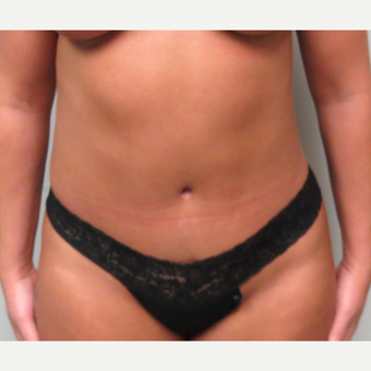 38  year old woman treated with Tummy Tuck
